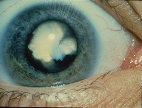 gotas-ojos-disolver-cataratas-sin-cirugia-2