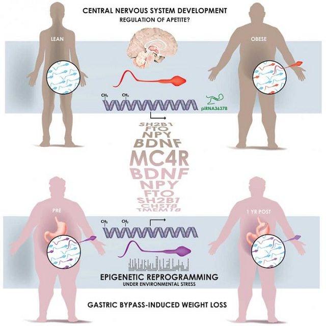 La imagen muestra cómo los espermatozoides de hombres obsesos tienen unas marcas epigenéticas diferentes comparadas con los hombres delgados. Estas marcas cambian cuando los hombres son sometidos a una cirugía de reducción de estómago. Fuente: Donkin and Versteyhe et al./Cell Metabolism 2015